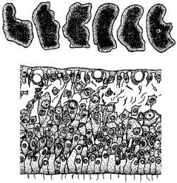 Трихоплакс